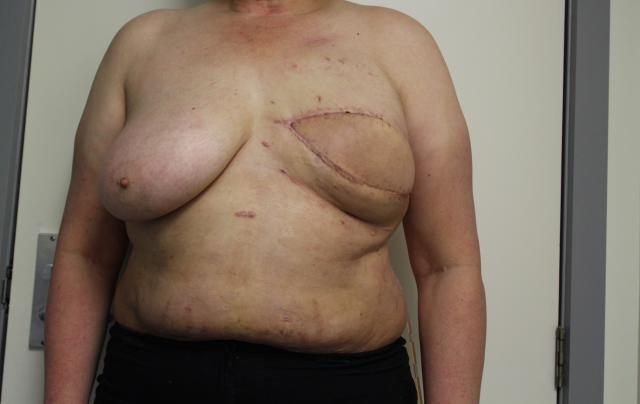 Case 1: A second round of fat grafting has started to create volume in the breast