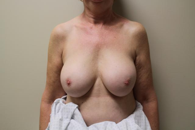 The breasts had tended to fall off old prostheses, riding high with scar formation