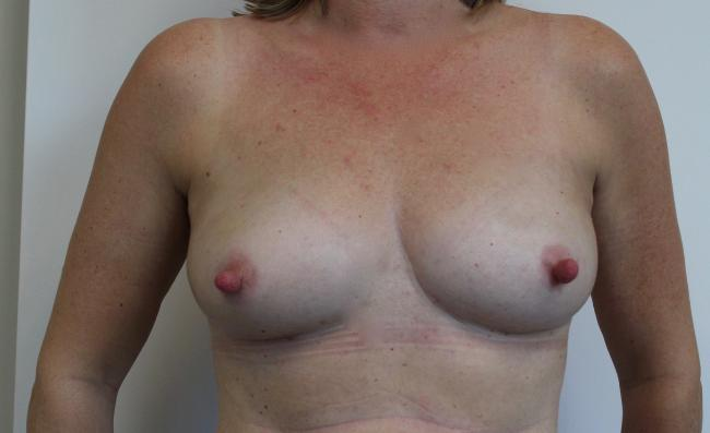 Case study 3 Post Op front
