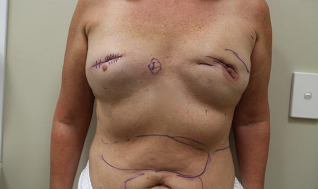 Pre-op breast showing scars pulling in to deep tissues