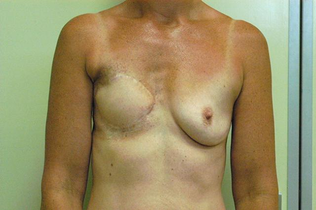 Case 1: Skin damaged from radiotherapy.