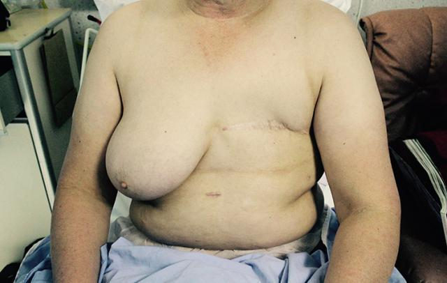 Lateral dorsi fat graft requiring two steps following mastectomy