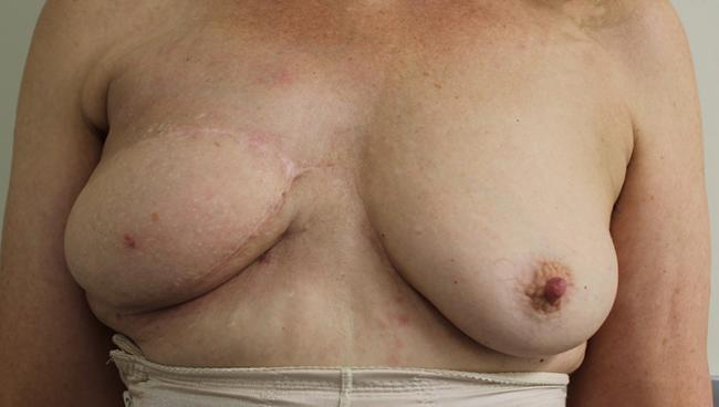 Case 2: Post op front