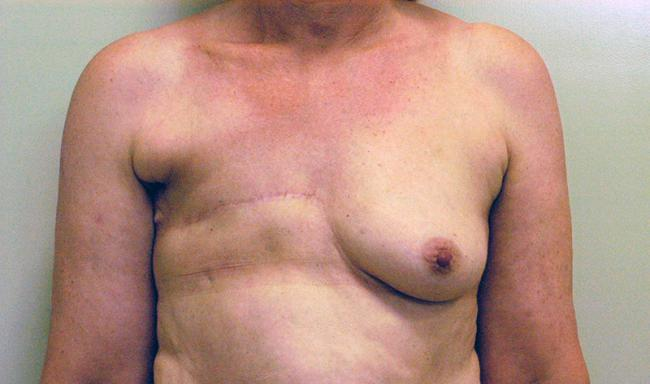 Case 2: Preop front