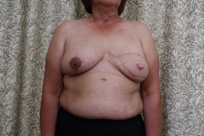 Progress photo shows the new breast