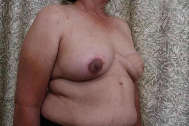 Case 3: New breast is complete and awaits nipple tattooing